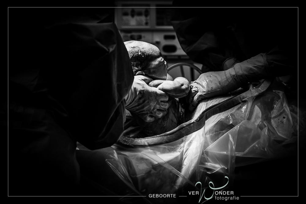 geboortefotografie keizersnede Heerenveen